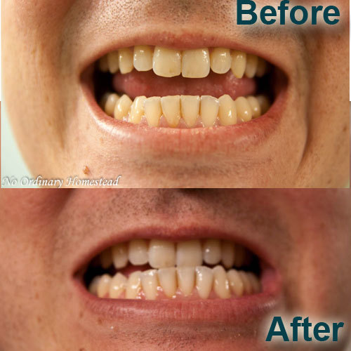 an easy exciting teeth whitening experience no ordinary